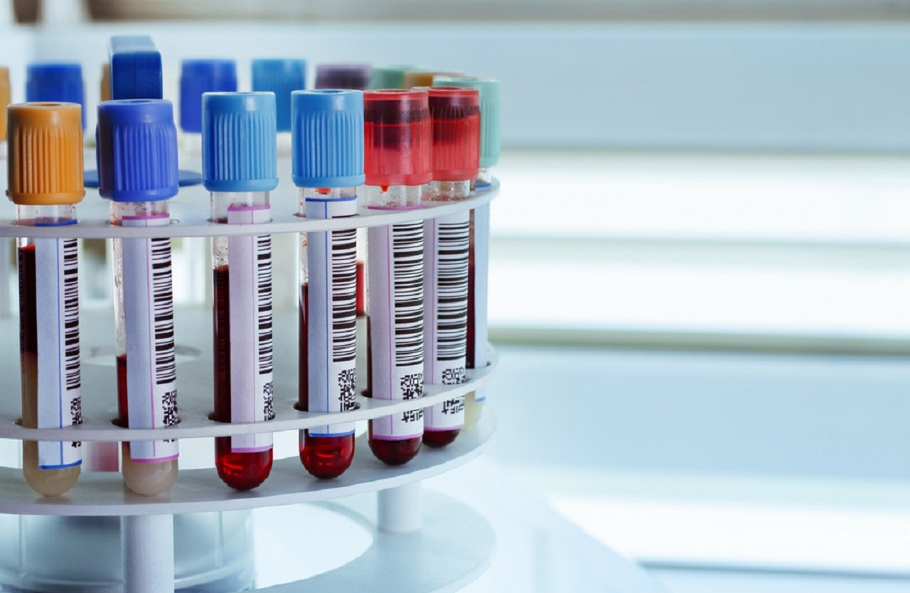 Liquid biopsy could detect pancreatic cancer early | Bioanalysis Zone