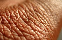 Proteomics analysis could help diagnose inflammatory skin diseases