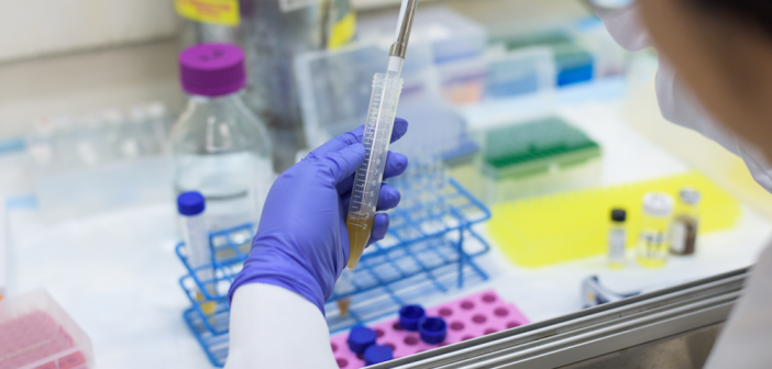 serology test-tube