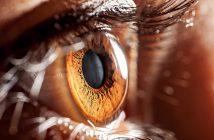 eye neuro