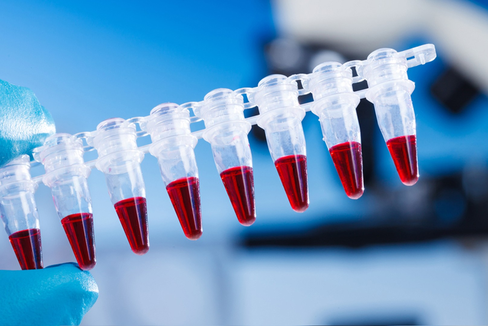 bioanalytical-samples 160177076_no-numbers