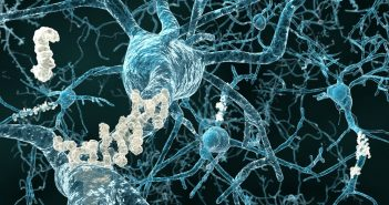 Alzheimer's disease - neurons with amyloid plaques 111506315